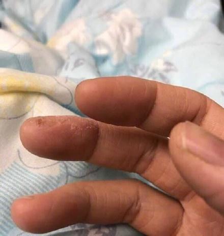 老哥们,我这手指还有救吗? 趣图