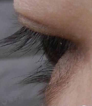 在淘宝上买了睫毛增长液之后,周围长满了毛,现在又买脱毛膏!!!