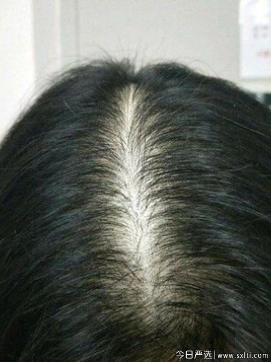 三个魔发匠生姜洗发水,三个魔发匠生姜洗发水能生发吗,三个魔发匠生姜洗发水效果怎么样