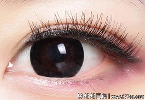什么是美瞳3