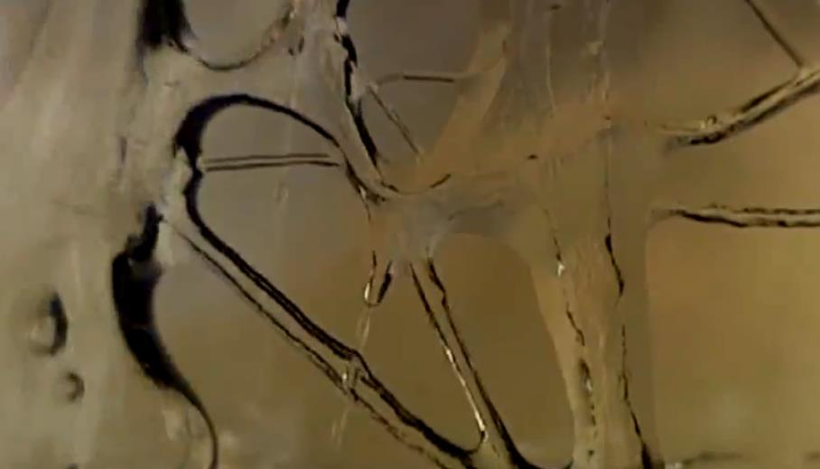 人体肌筋膜微管